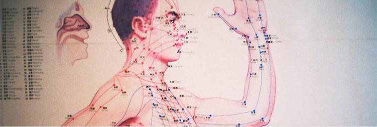 acupuncture2b